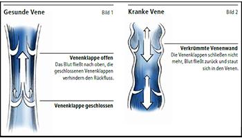 Venendiagramm